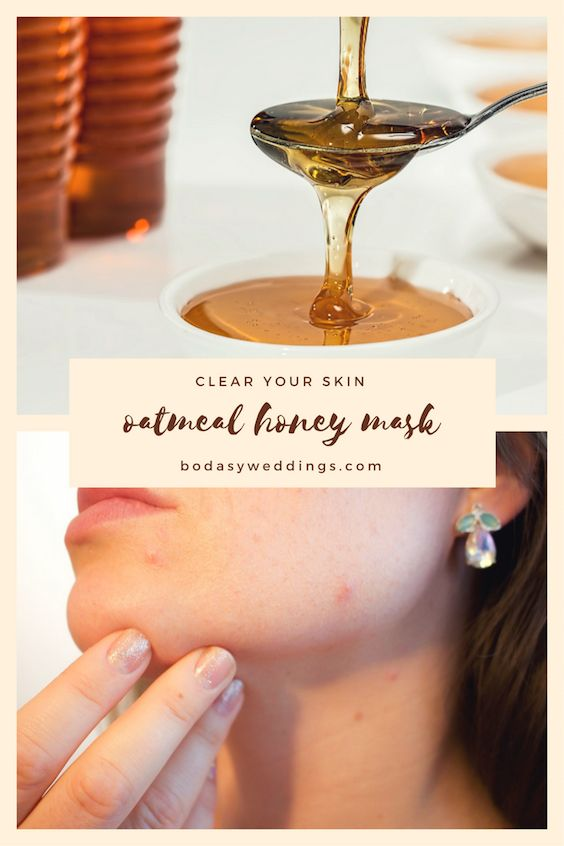 Honey has antibacterial, antioxidant and anti-inflammatory properties that fight against acne and nourish damaged skin.
